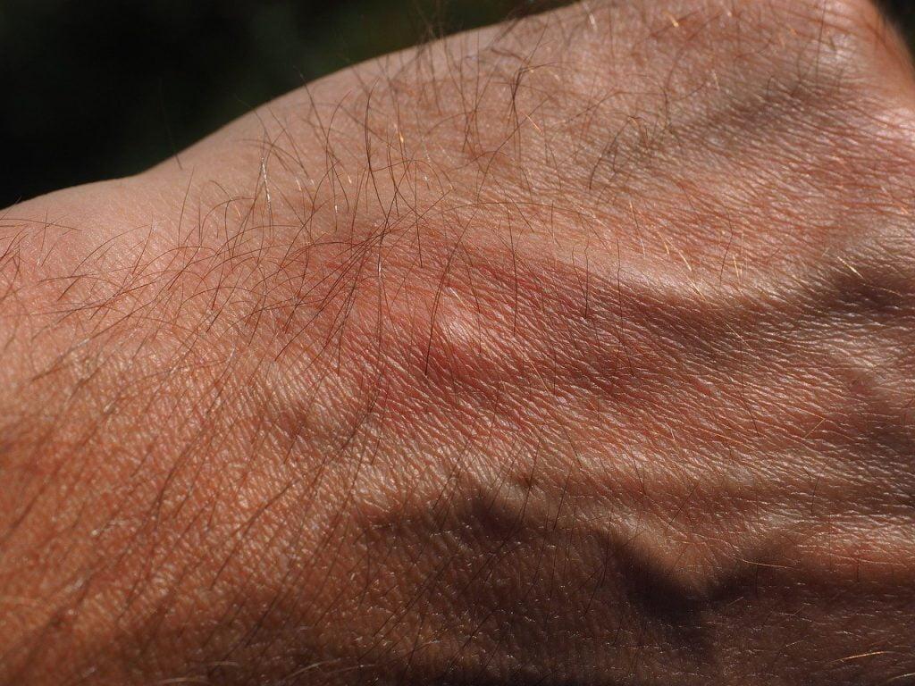 A mosquito bite